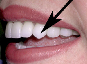 Image result for canine teeth